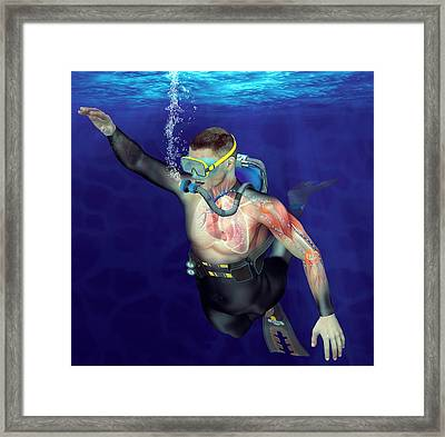 Decompression Sickness Framed Print by Claus Lunau