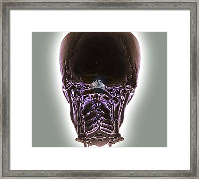 Decreased Brain Blood Flow Framed Print