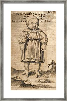 Deformed Child Framed Print by King's College London