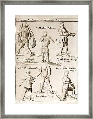 Deformities Real And Imagined, 1662 Framed Print by Paul D. Stewart
