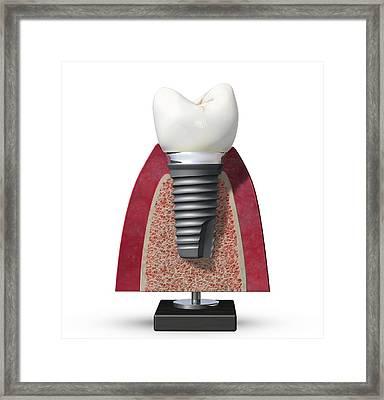 Dental Implant, Artwork Framed Print by Science Photo Library