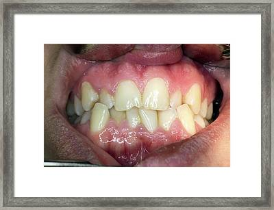 Dental Malocclusion Framed Print by Dr Armen Taranyan