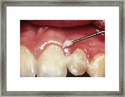 Dental Plaque And Gum Disease Framed Print by Cnri