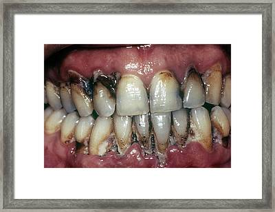 Dental Tartar Framed Print by Cnri