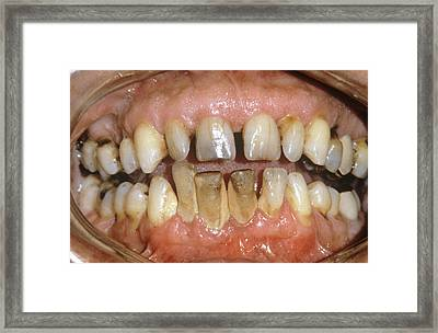 Dental Tartar Framed Print