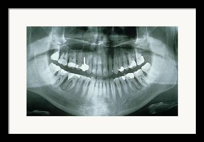 Medical Medical Imaging Framed Prints