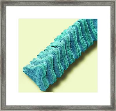 Desmidium Desmid Framed Print by Steve Gschmeissner