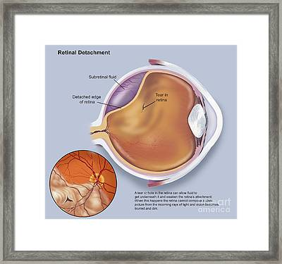 Diagram Of A Retinal Detachment Framed Print