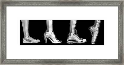 Different Shoes X-ray Framed Print