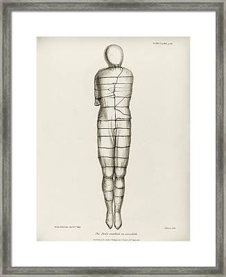 Disinterred 15th-century Body Framed Print