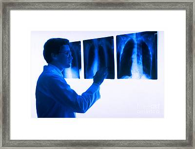 Doctor Views X-rays Framed Print