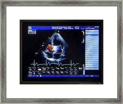 Doppler Echocardiography Scan Framed Print