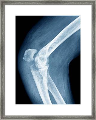 Elbow Fracture Framed Print