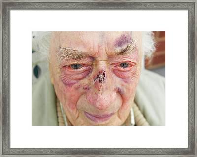 Elderly Man's Face After Fall Framed Print