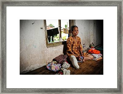 Elderly Woman With Leprosy Framed Print