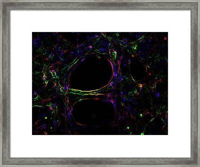 Electric Brain 1 Framed Print by Tyler Sloan