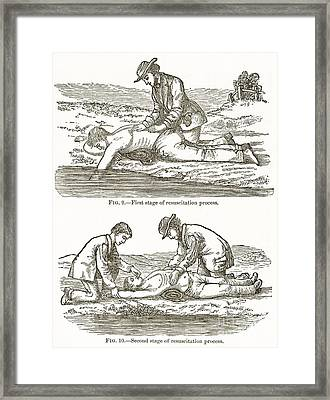Emergency Resuscitation, 19th Century Framed Print by Middle Temple Library