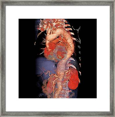 Enlarged Aorta Framed Print by Anders Persson, Cmiv
