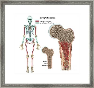 Ewings Sarcoma Locations Framed Print by TriFocal Communications