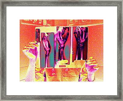 Examining Medical X-rays Framed Print by Larry Berman