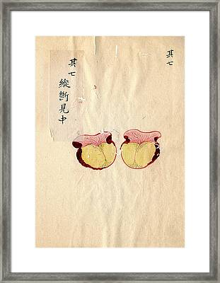 Excised Breast Cancer Framed Print by National Library Of Medicine