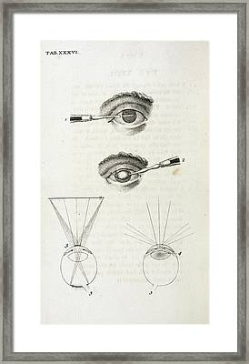 Eye Surgery Framed Print by British Library