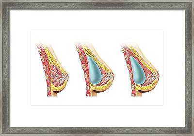 Female Breast Implant Framed Print by Leonello Calvetti