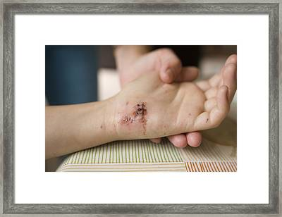 Female Hand Injury Framed Print