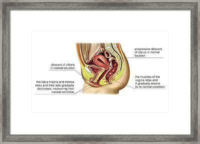 Female Sexual Response Framed Print by Asklepios Medical Atlas