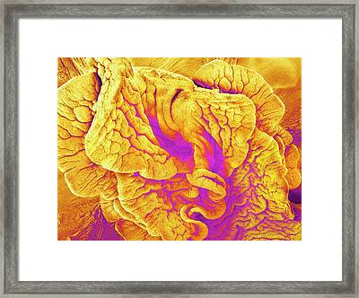 Fimbriae Of A Fallopian Tube Framed Print by Susumu Nishinaga