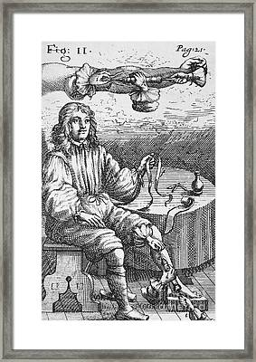 First Intravenous Injection, 17th Framed Print by Spl