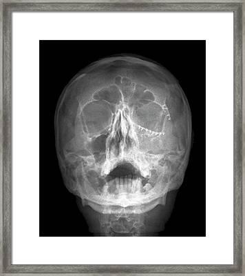 Fixed Skull Fractures Framed Print by Zephyr