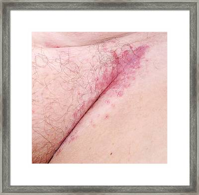 Flexural Psoriasis Of A Groin Cleft Framed Print
