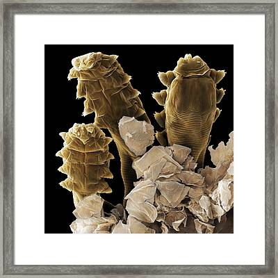 Follicle Mite Heads (sem) Framed Print
