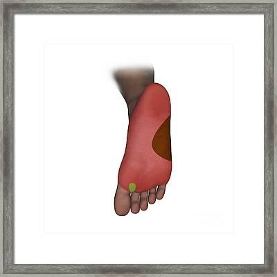 Foot Plantar Nerve Regions, Artwork Framed Print