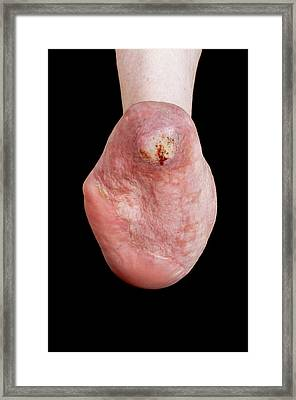 Foot Reconstruction After Toe Amputations Framed Print by Mid Essex Hospital Services Nhs Trust
