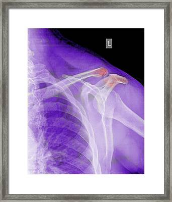 Fractured Clavicle Framed Print