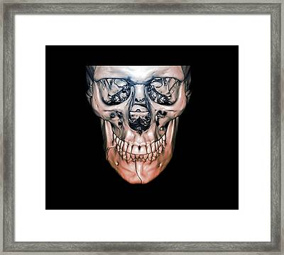 Fractured Jaw Framed Print by Zephyr
