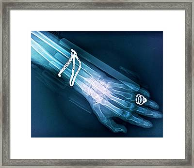 Fractured Wrist Framed Print