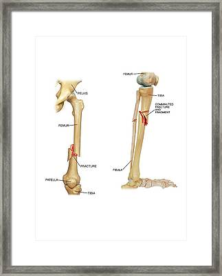 Fractures Of The Femur And Tibia Framed Print by John T. Alesi