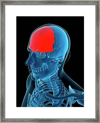 Frontal Bone, Artwork Framed Print by Sciepro