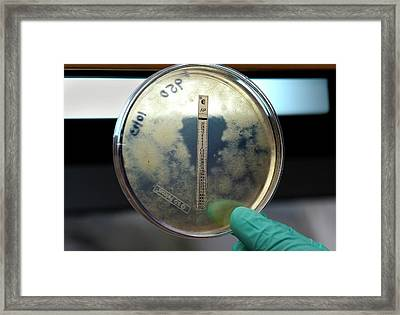 Fungal Meningitis Research Framed Print