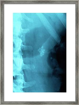 Gallstones Framed Print by Dr P. Marazzi/science Photo Library