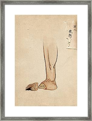 Gangrene Amputation Framed Print