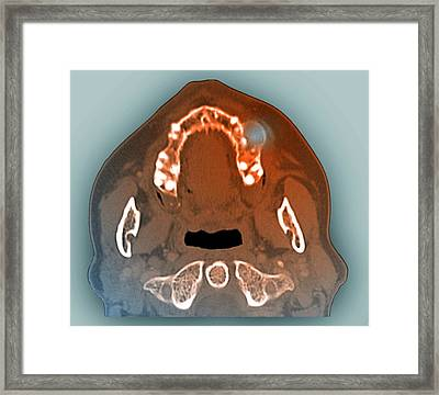Giant Cell Granuloma Of The Jaw Framed Print