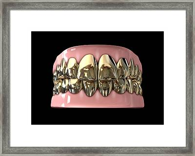Golden Gangster Teeth And Gums Framed Print by Allan Swart