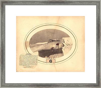 Gunshot Wound Framed Print by National Library Of Medicine