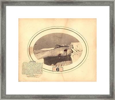 Gunshot Wound Framed Print