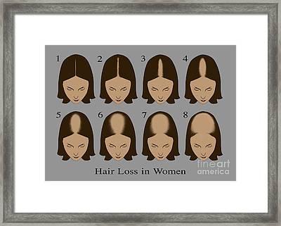Hair Loss Framed Print by Gwen Shockey