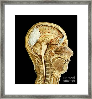 Head And Neck, Mid Sagittal Section Framed Print by VideoSurgery